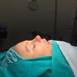 Före och efterbilder efter min näsoperation.
